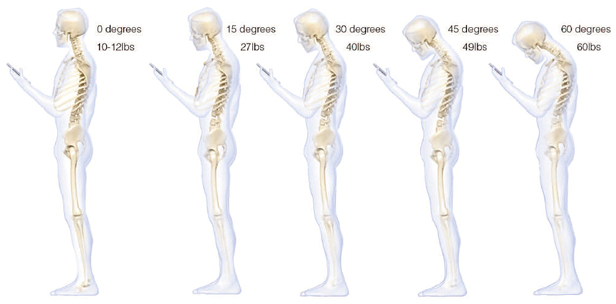 Neck and Head Pain Posture